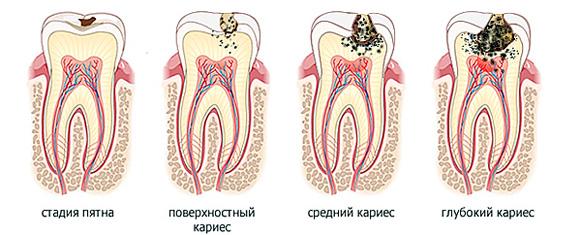 Черные точки и налет на зубах