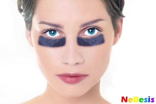 Почему появляются синие круги под глазами?