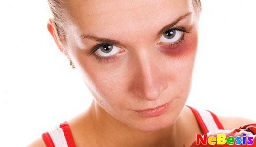 Как убрать и свести синяк под глазом?