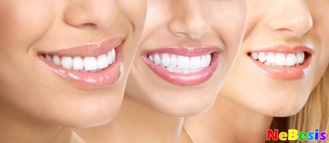 Быстрое домашнее отбеливание зубов