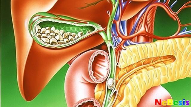 dieta-pri-zhelchnokamennoj-bolezni
